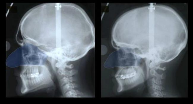 nosa muski zenski Zašto muškarci imaju veće noseve od žena