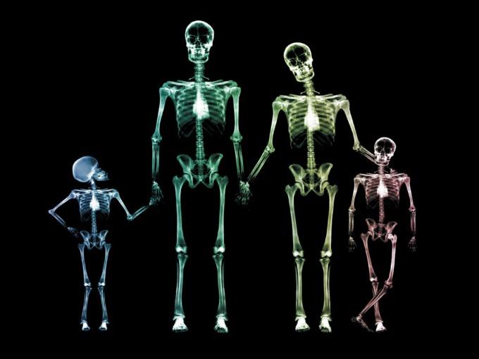 kosturi Vic dana: Bejzbol i kosturi